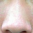 脂漏性皮膚の症状が進んだ写真